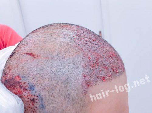 自毛植毛手術経過写真 韓国植毛手術直後の写真