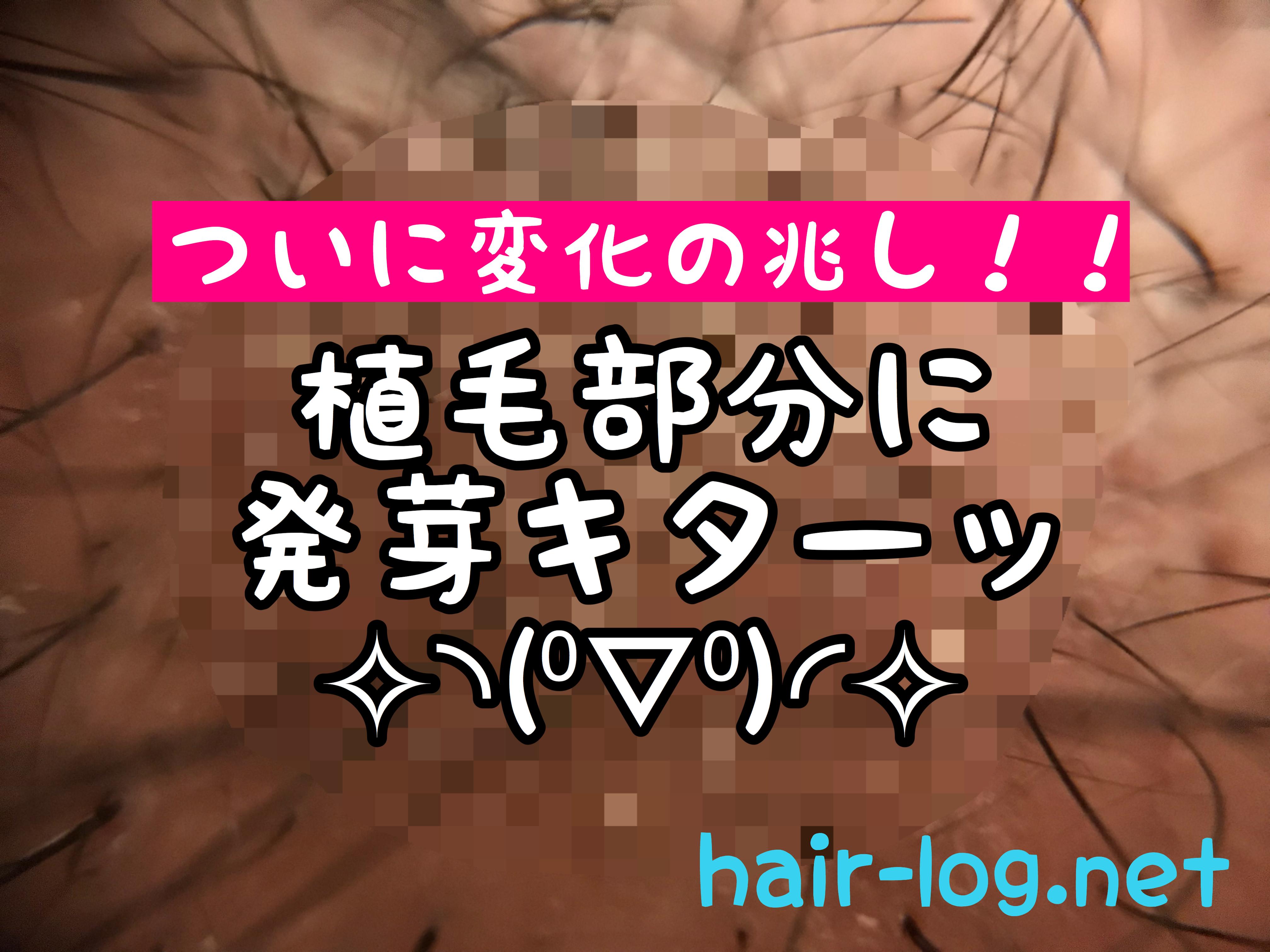【術後69日目】ついに変化の兆し!!植毛部分に発芽キターッ!!