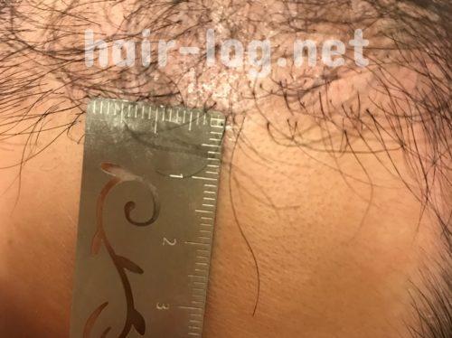 自毛植毛手術経過写真 術後80日目の移植毛の長さ。