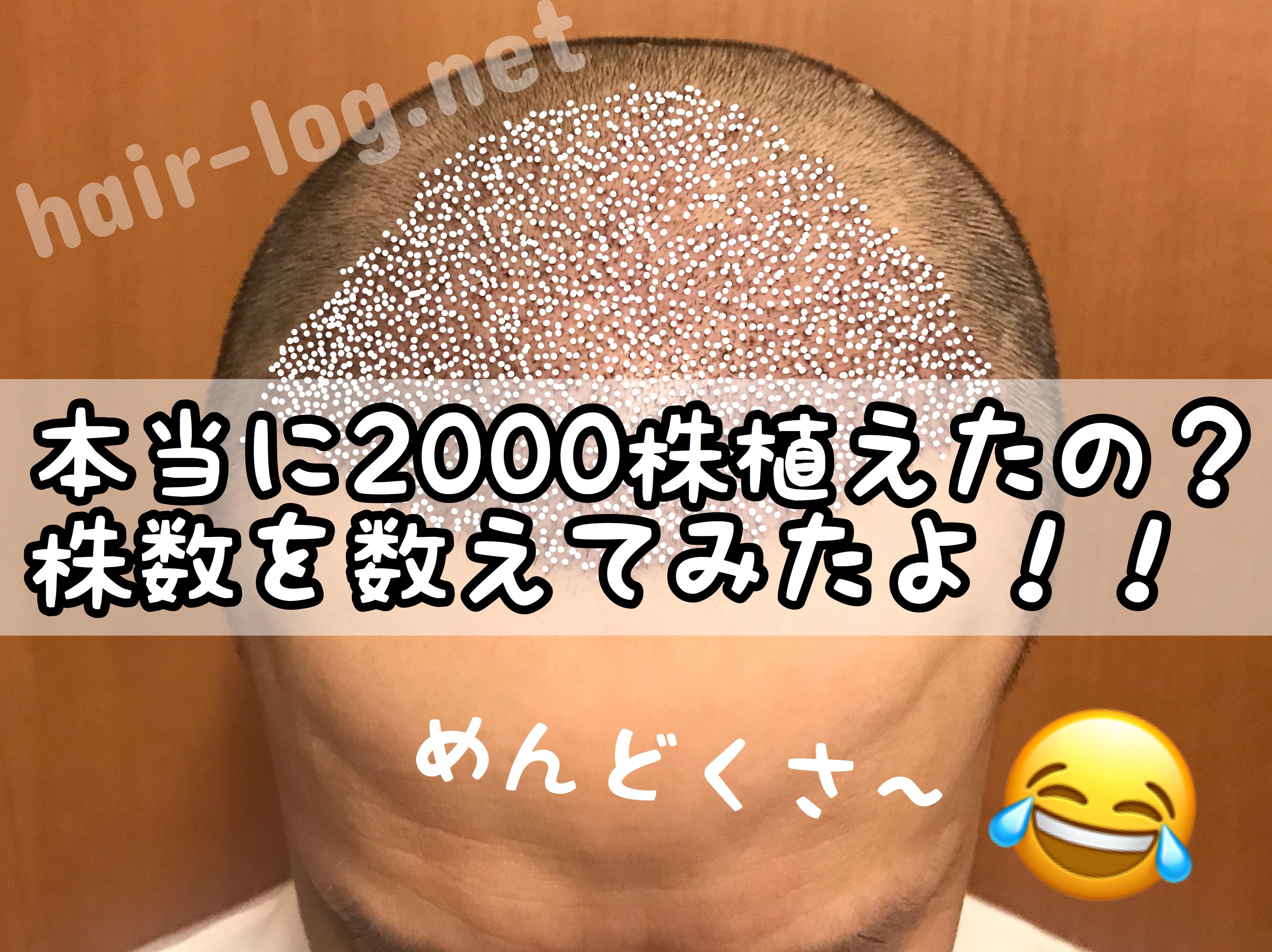 【植毛手術後86日目】本当に2000株植えたの?株数を数えてみたよ!!