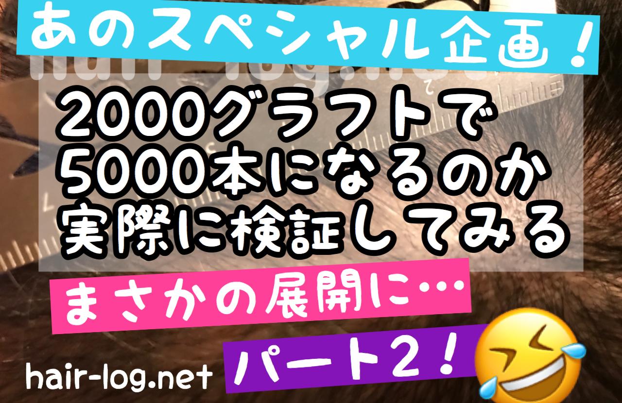 【植毛手術後100日】あのスペシャル企画!2000グラフトで5000本になるか実際に検証してみる【Part2】