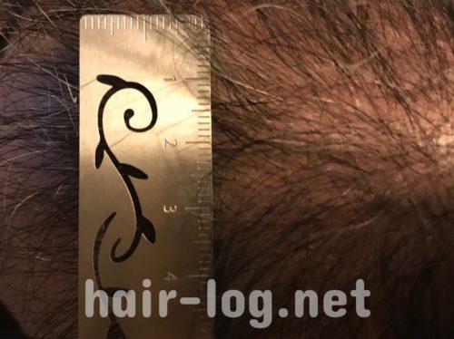 自毛植毛手術経過写真 術後100日目ワサワサしてて定規があてられないの図