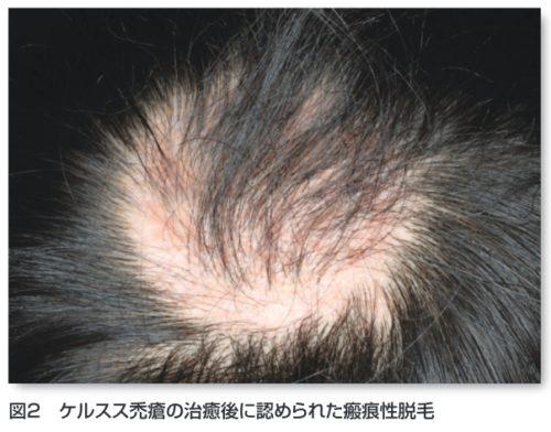 ケルスス禿瘡、二度と髪が生えない
