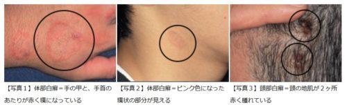 柔道選手のトリコフィトン・トンズランス感染症