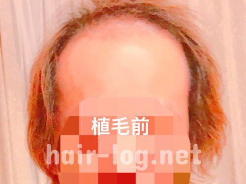 ニツクの植毛前の写真