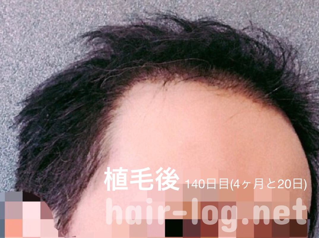 ニツクの植毛後4ヶ月の写真