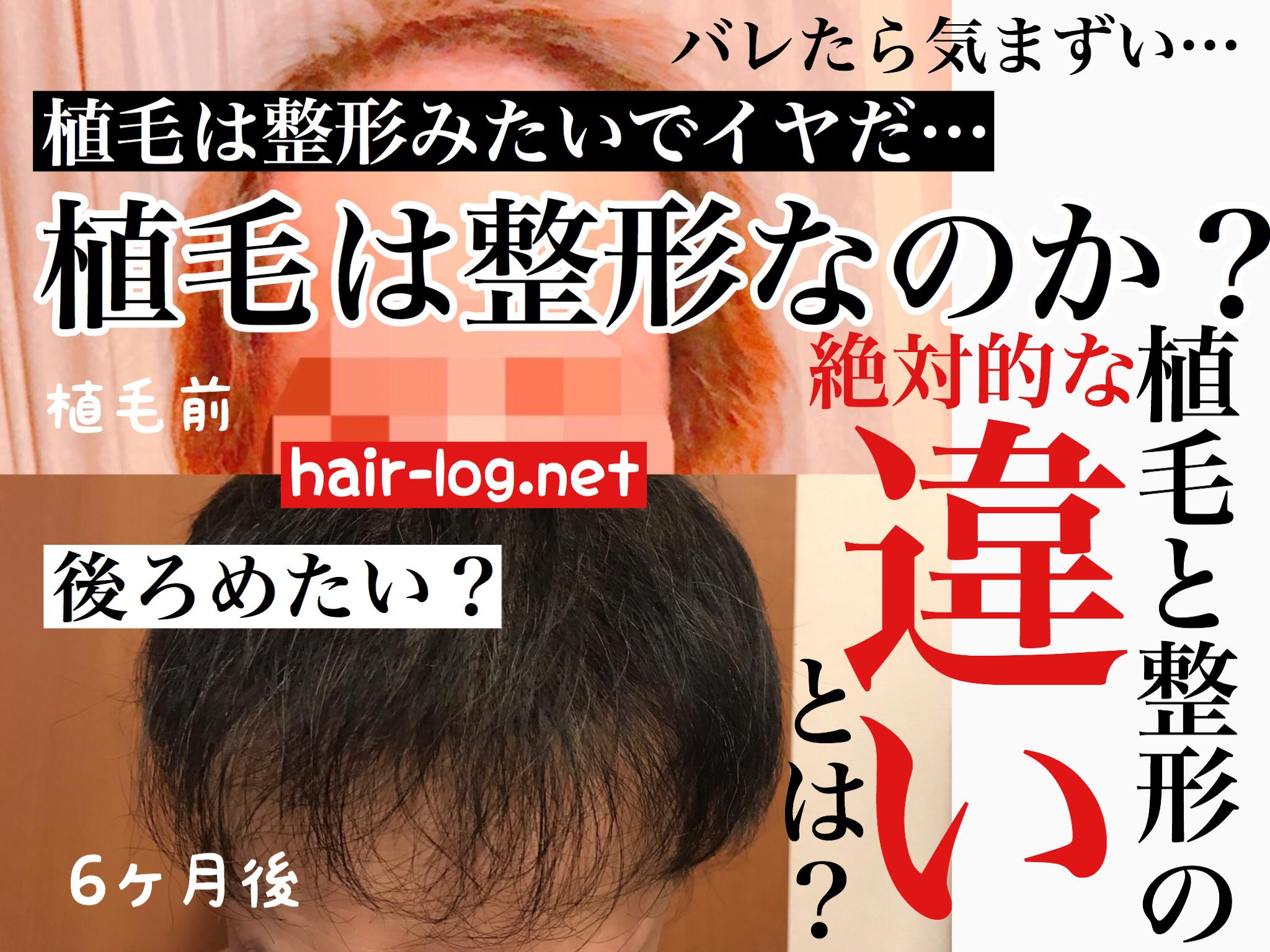 【植毛コラム】植毛は整形みたいでイヤだと思っている人へ捧ぐ。整形と植毛の違い。