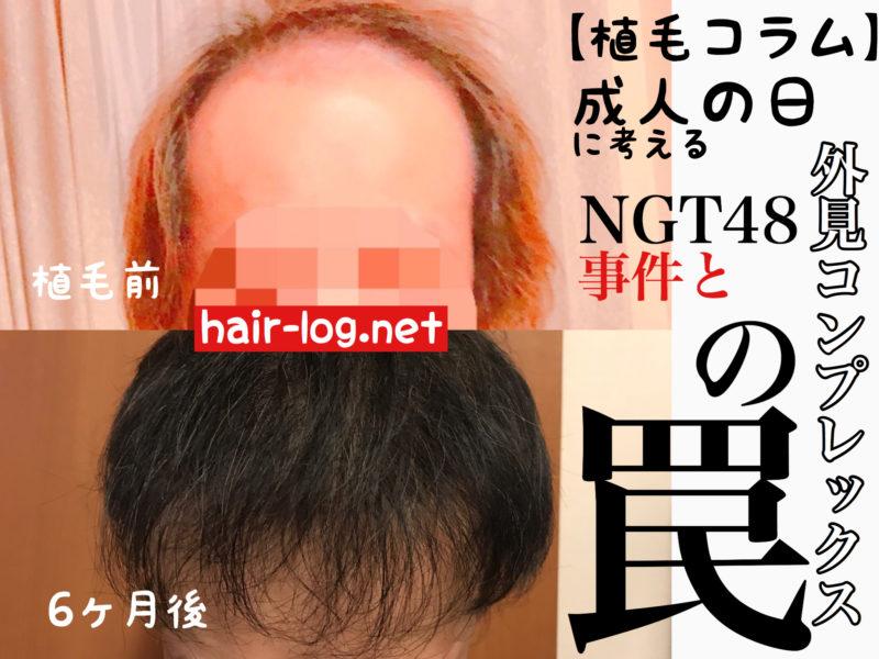 【植毛コラム】成人の日に考える、NGT48事件と外見コンプレックスの罠