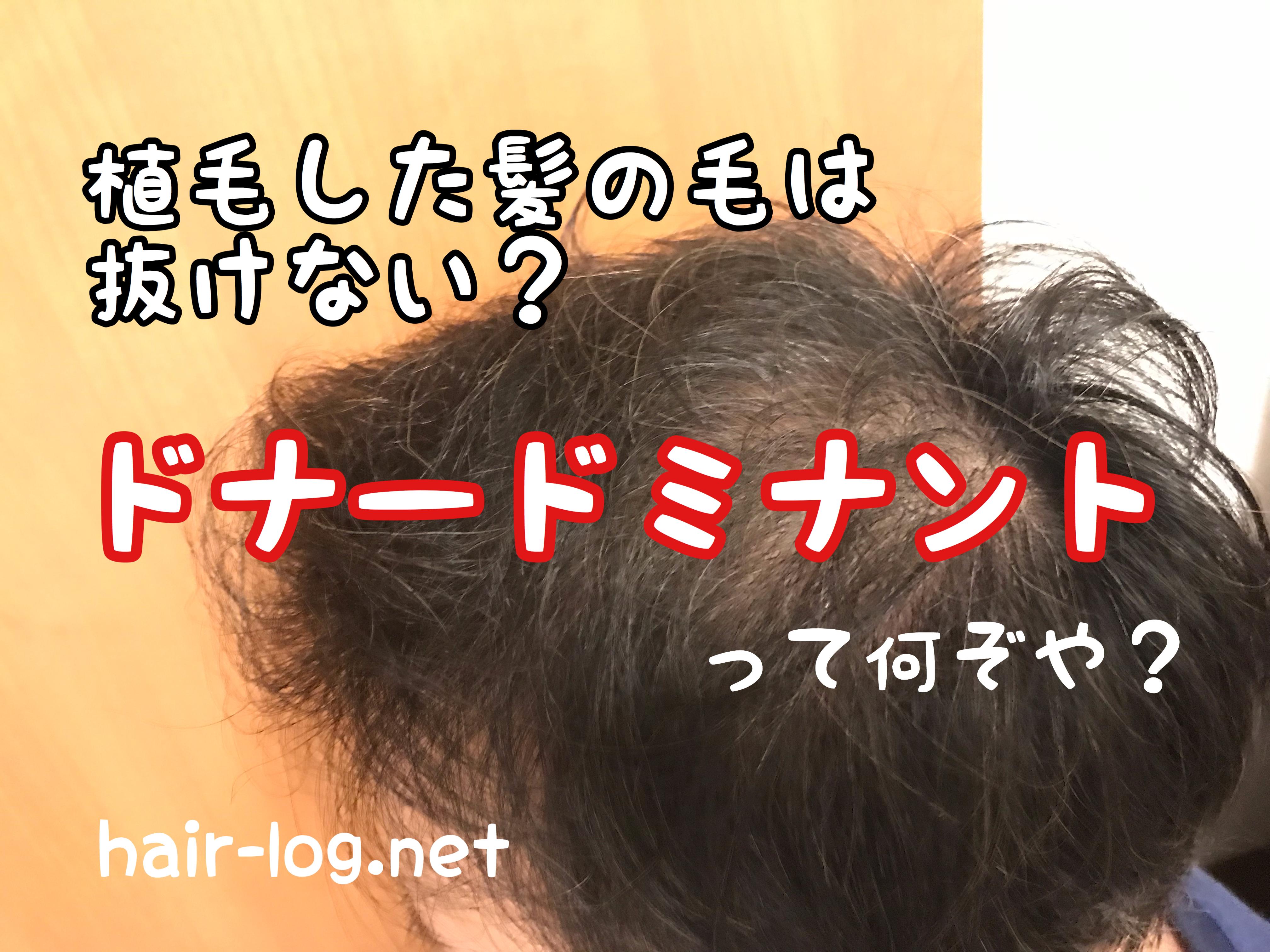 【植毛手術後199日目】植毛した髪の毛は抜けない?ドナードミナントって何ぞや?