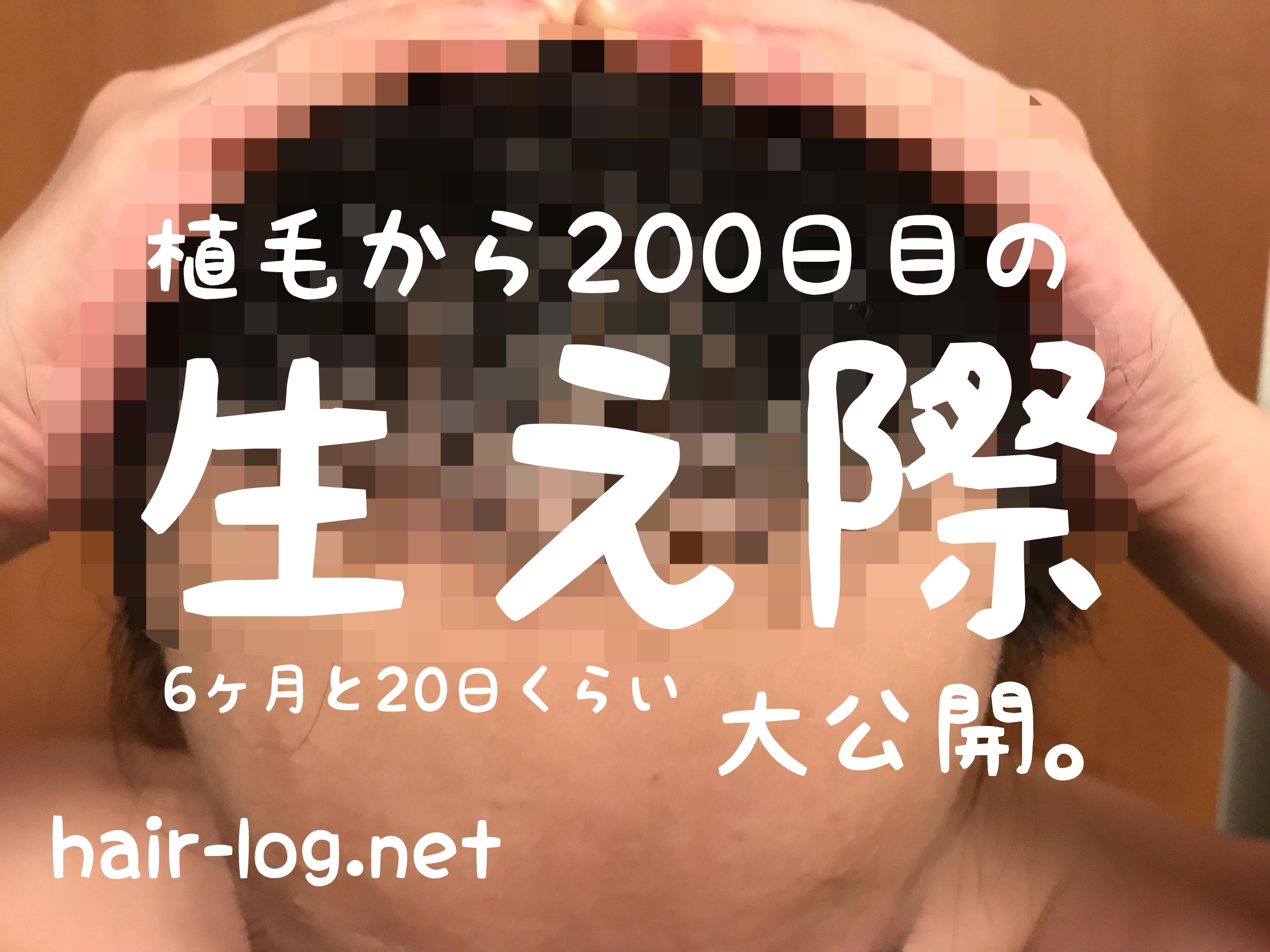 【植毛手術後200日目】200日記念!生え際、大公開。
