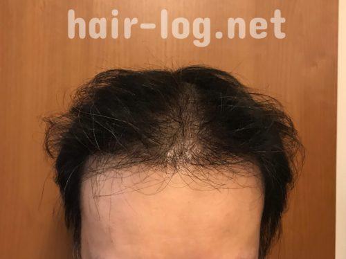 【植毛手術後188日目】今日も育毛レシピ書きました。毎日を無駄にしないために。