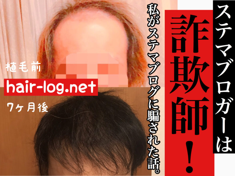 【植毛コラム】ステマブロガーは詐欺師!私がステマブログに騙された話。