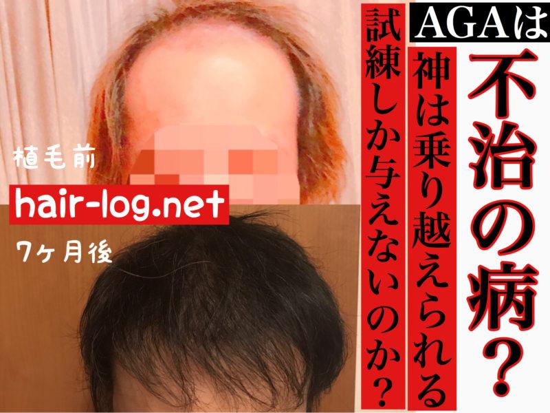 【植毛コラム】AGAは不治の病?神は乗り越えられる試練しか与えないのか?