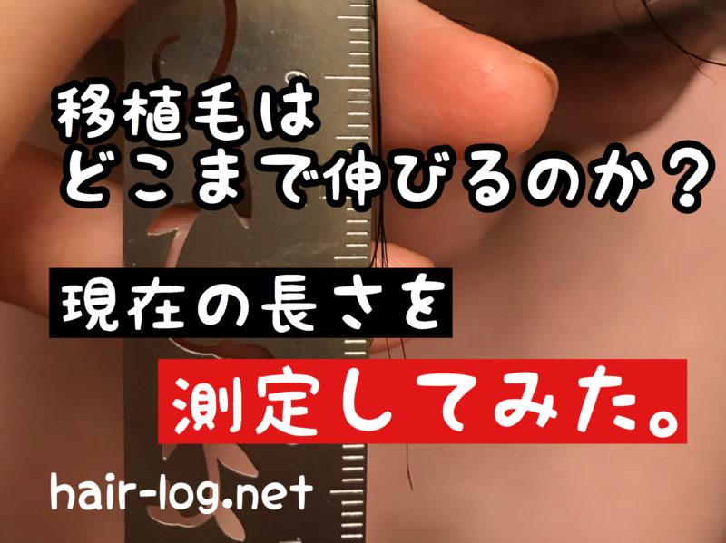 【植毛手術後205日目】移植毛はどこまで伸びるのか?現在の長さを測定!