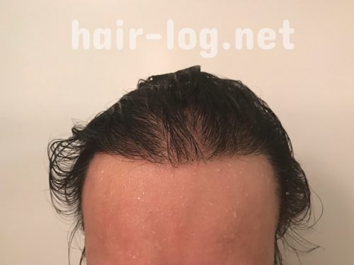 自毛植毛術後経過写真 術後251日目完全に濡れた状態。