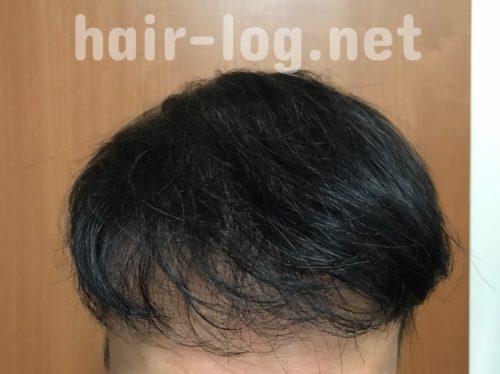 植毛を染めたらどうなる?禁断のヘアカラーをしてみた結果、失敗した話。ビフォー