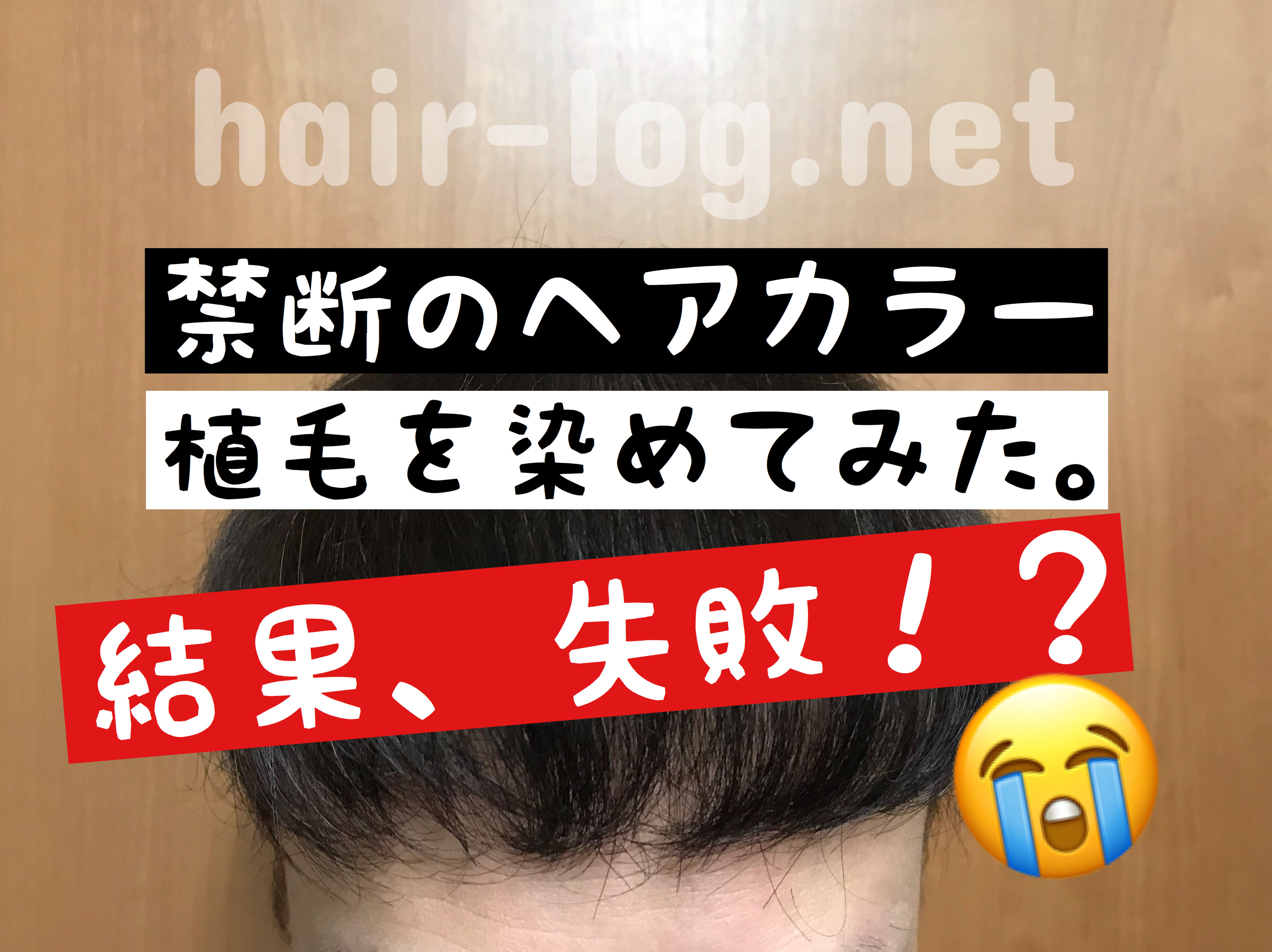 植毛を染めたらどうなる?禁断のヘアカラーをしてみた結果、失敗した話。
