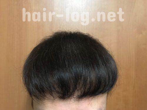 植毛を染めたらどうなる?禁断のヘアカラーをしてみた結果、失敗した話。アフター